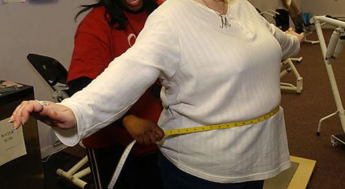 Obesity_533
